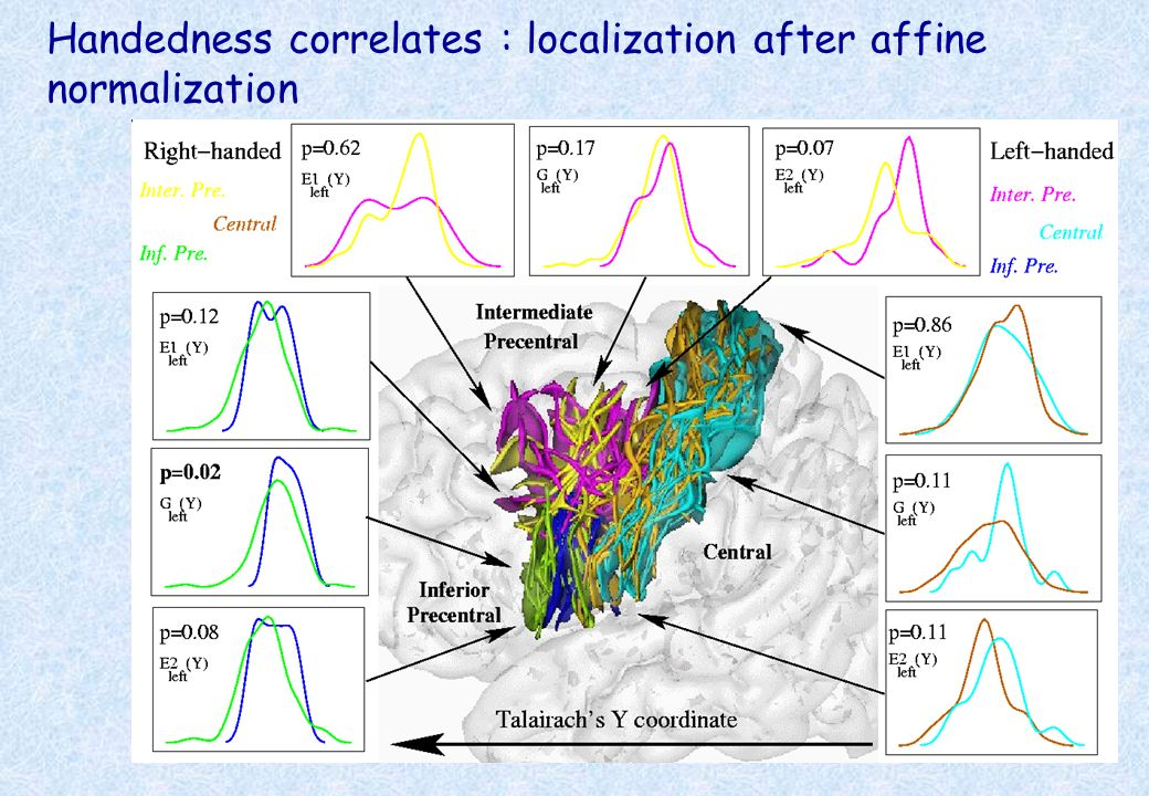 Handedness correlates : localization after affine normalization