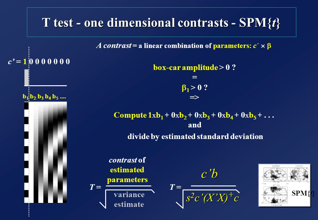 T test - one dimensional contrasts - SPM{t}