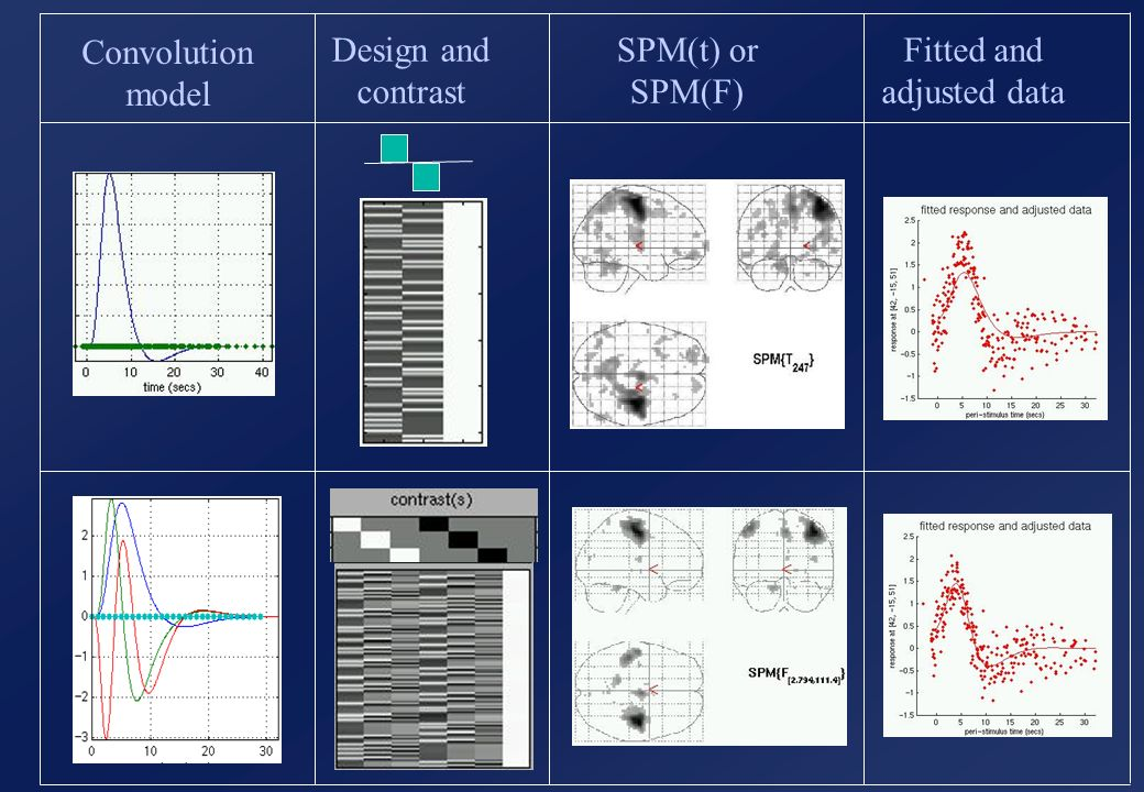 Convolution model Design and contrast SPM(t) or SPM(F) Fitted and adjusted data