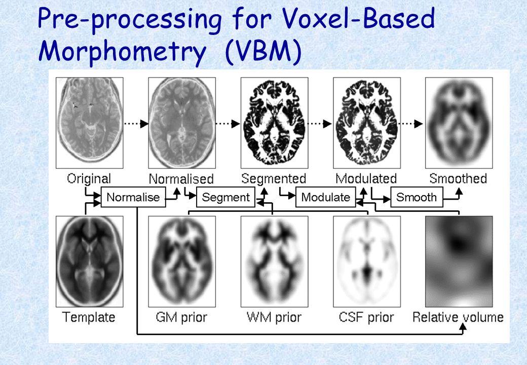 Pre-processing for Voxel-Based Morphometry (VBM)