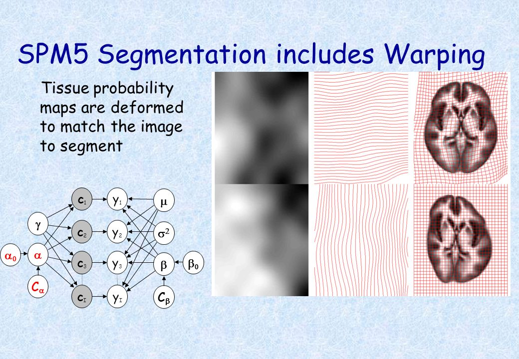SPM5 Segmentation includes Warping