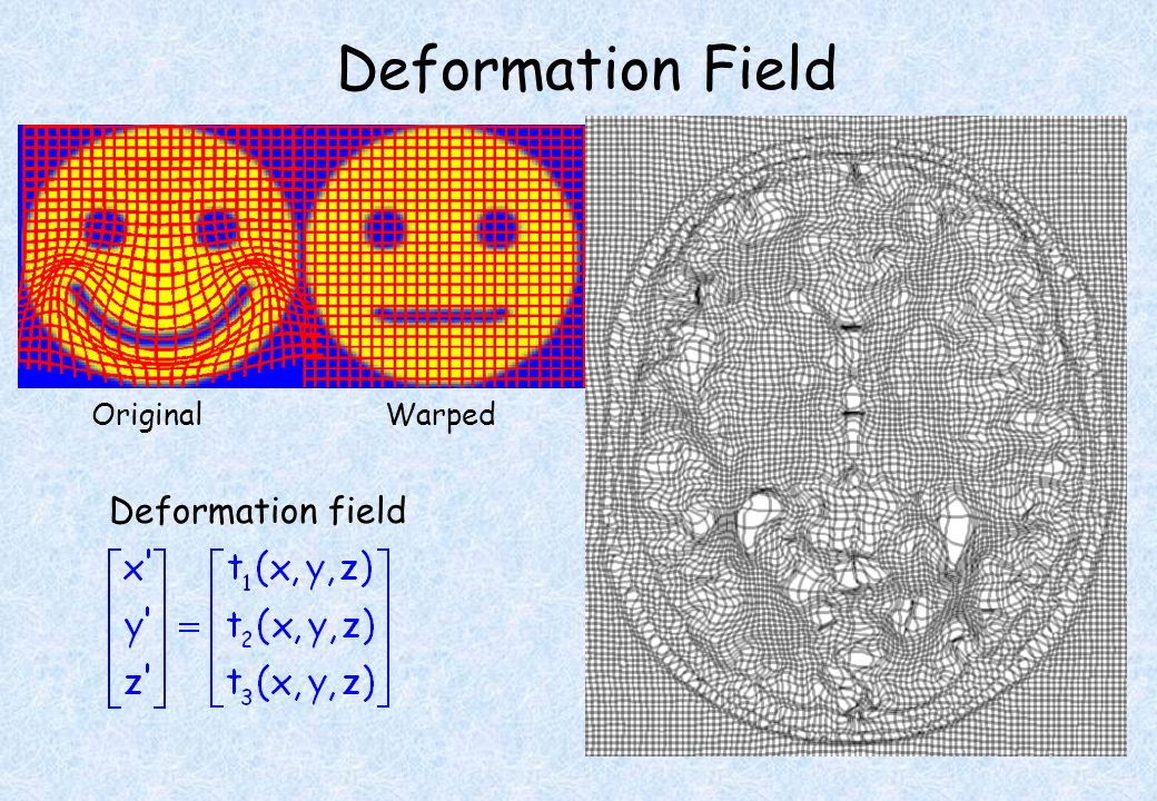 Deformation Field Original Warped Template Deformation field