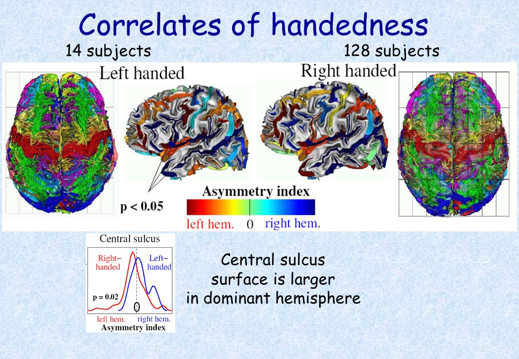 Correlates of handedness