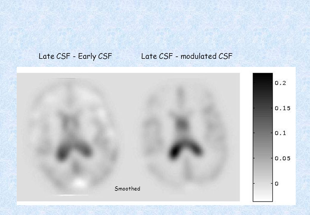 Late CSF - modulated CSF
