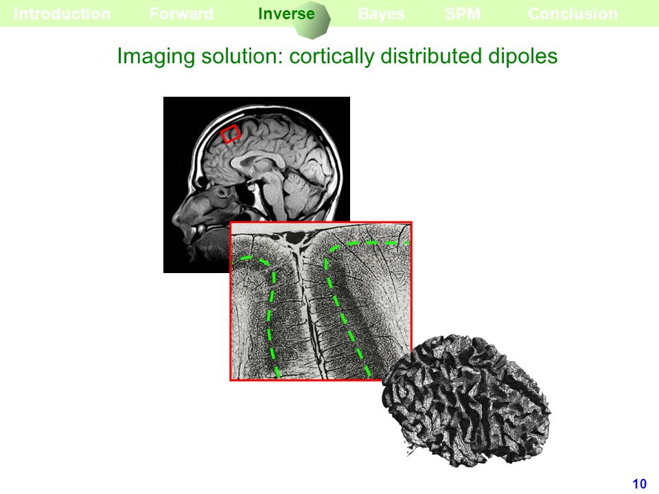 Imaging solution: cortically distributed dipoles