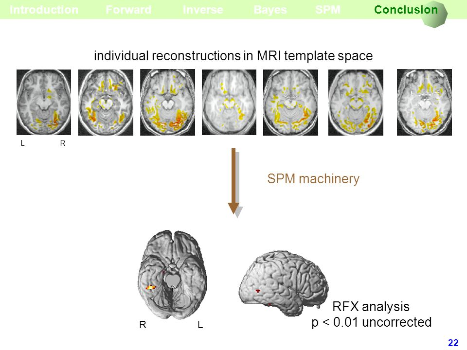 individual reconstructions in MRI template space