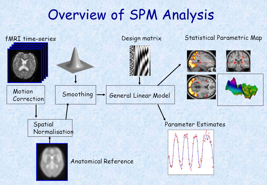 Overview of SPM Analysis