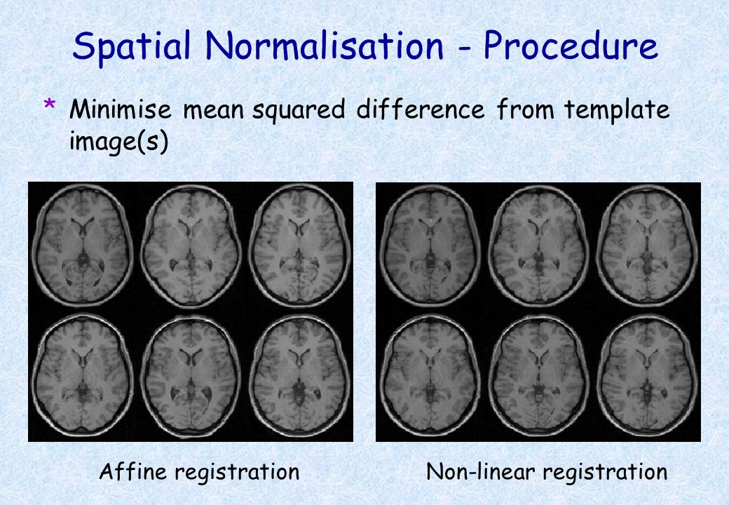 Spatial Normalisation - Procedure