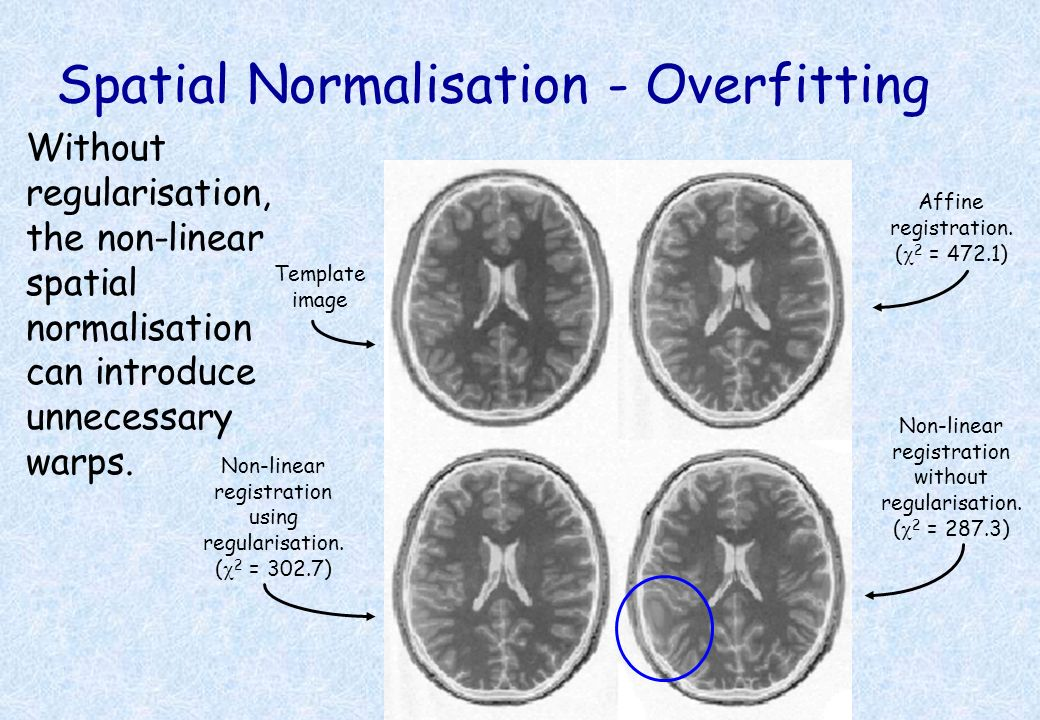 Spatial Normalisation - Overfitting