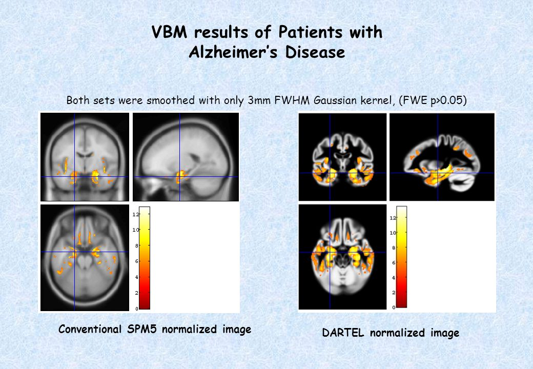 VBM results of Patients with Alzheimer's Disease
