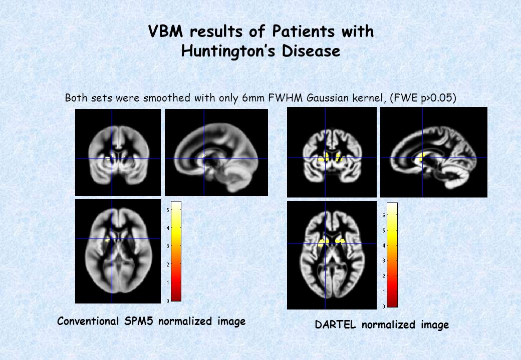 VBM results of Patients with Huntington's Disease