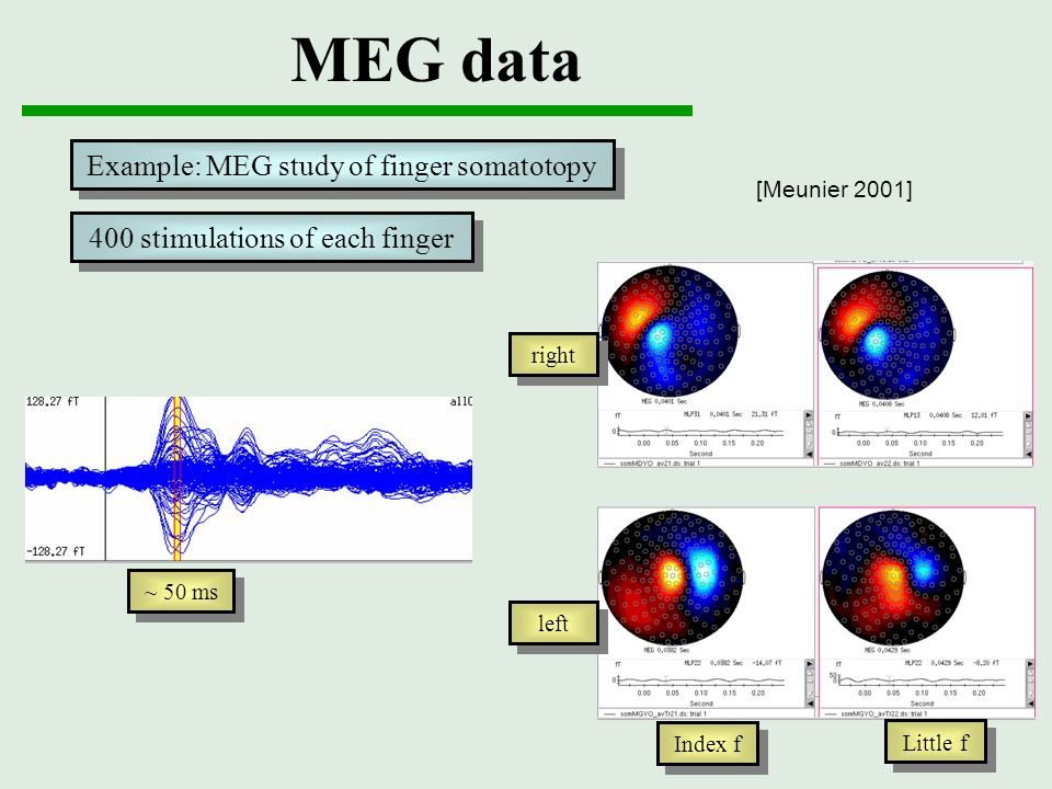MEG data Example: MEG study of finger somatotopy
