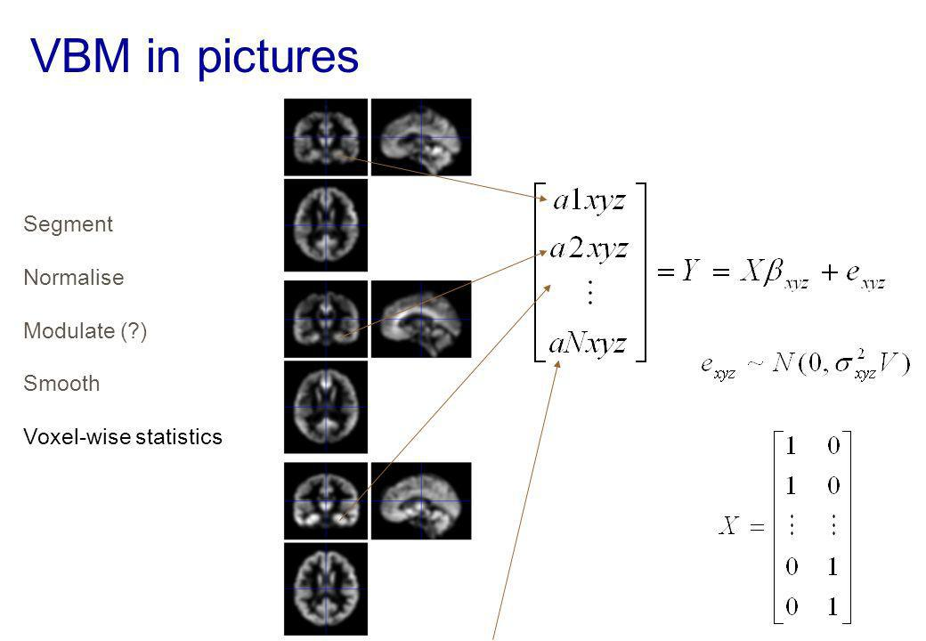 VBM in pictures Segment Normalise Modulate ( ) Smooth