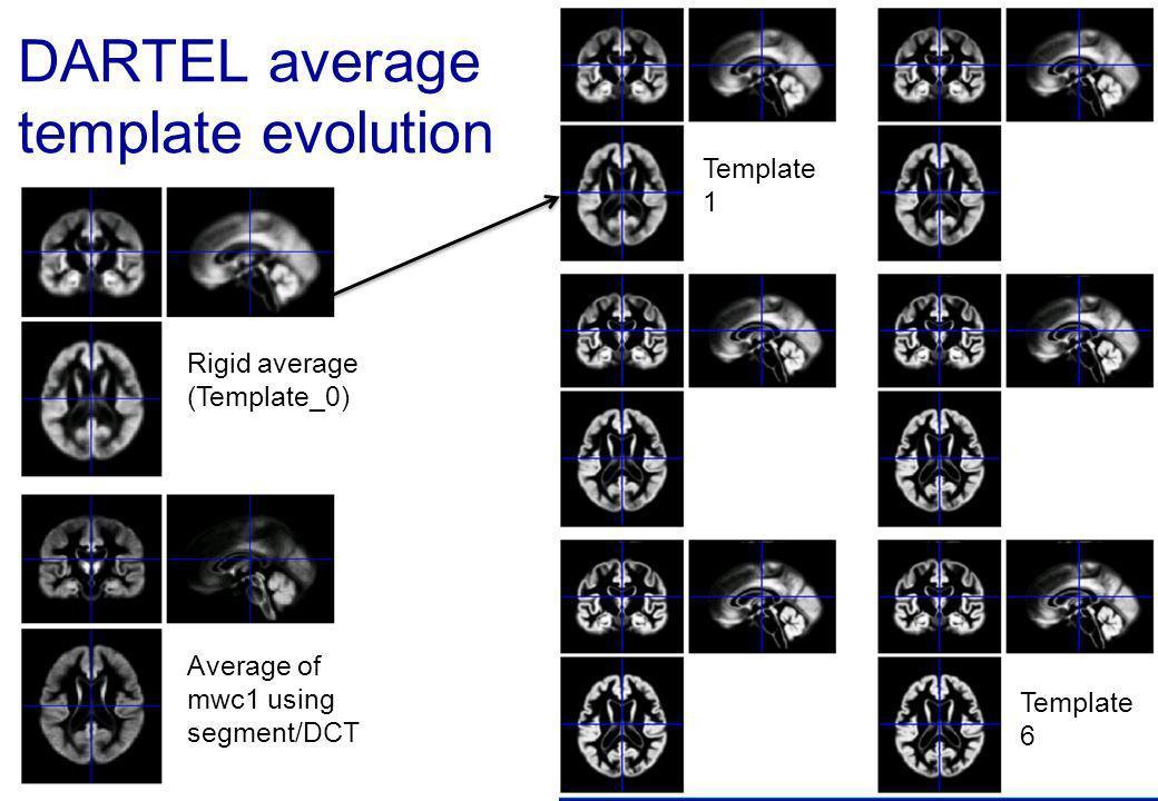 DARTEL average template evolution