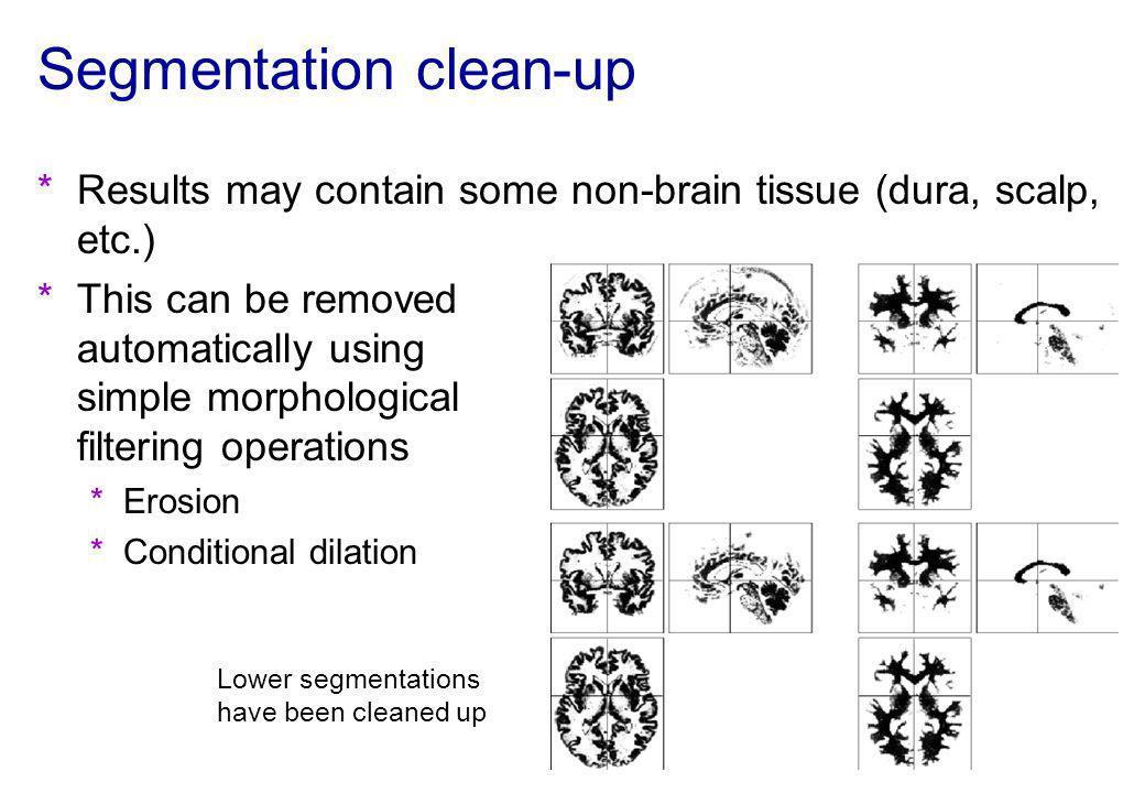 Segmentation clean-up