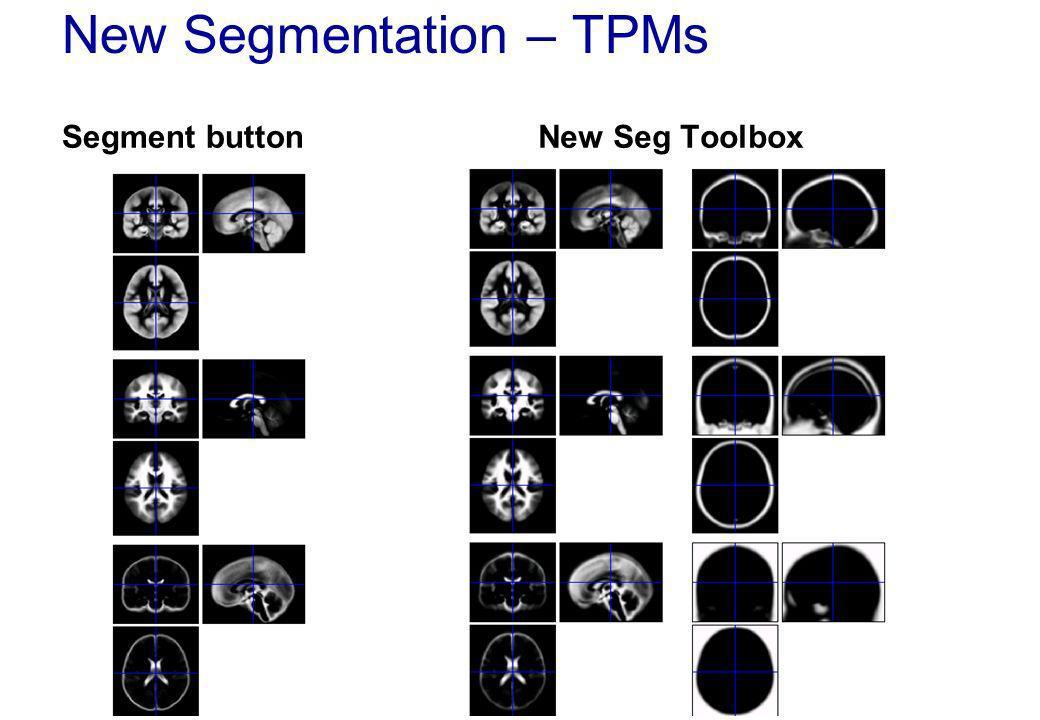 New Segmentation – TPMs