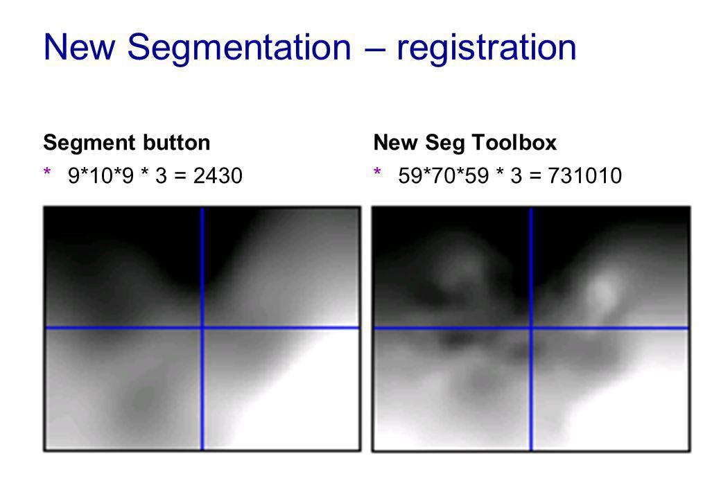 New Segmentation – registration