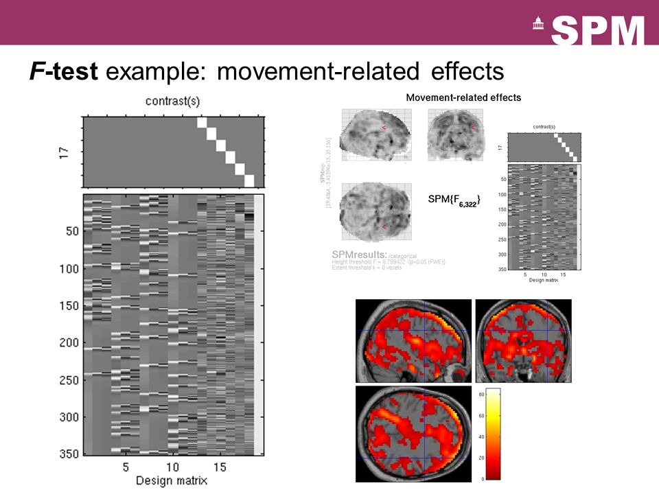 F-test example: movement-related effects