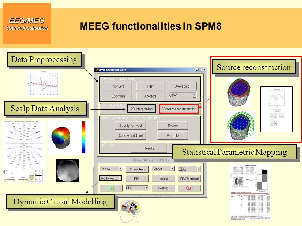 MEEG functionalities in SPM8