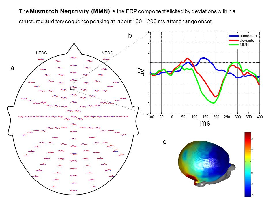The Mismatch Negativity (MMN) is the ERP component elicited by deviations within a structured auditory sequence peaking at about 100 – 200 ms after change onset.