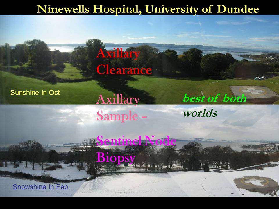 Axillary Clearance Axillary Sample – Sentinel Node Biopsy