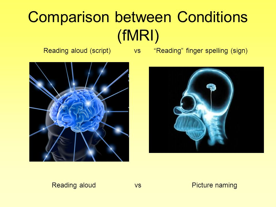 Comparison between Conditions (fMRI)