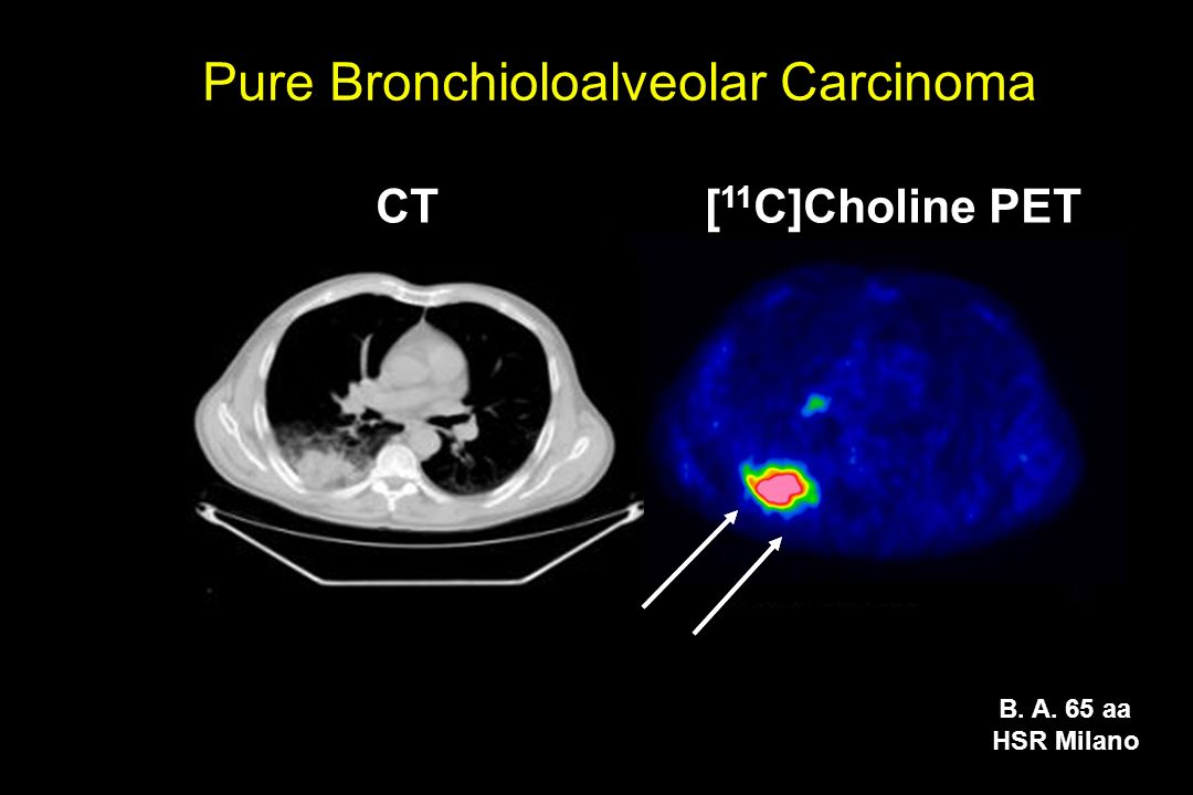 Pure Bronchioloalveolar Carcinoma