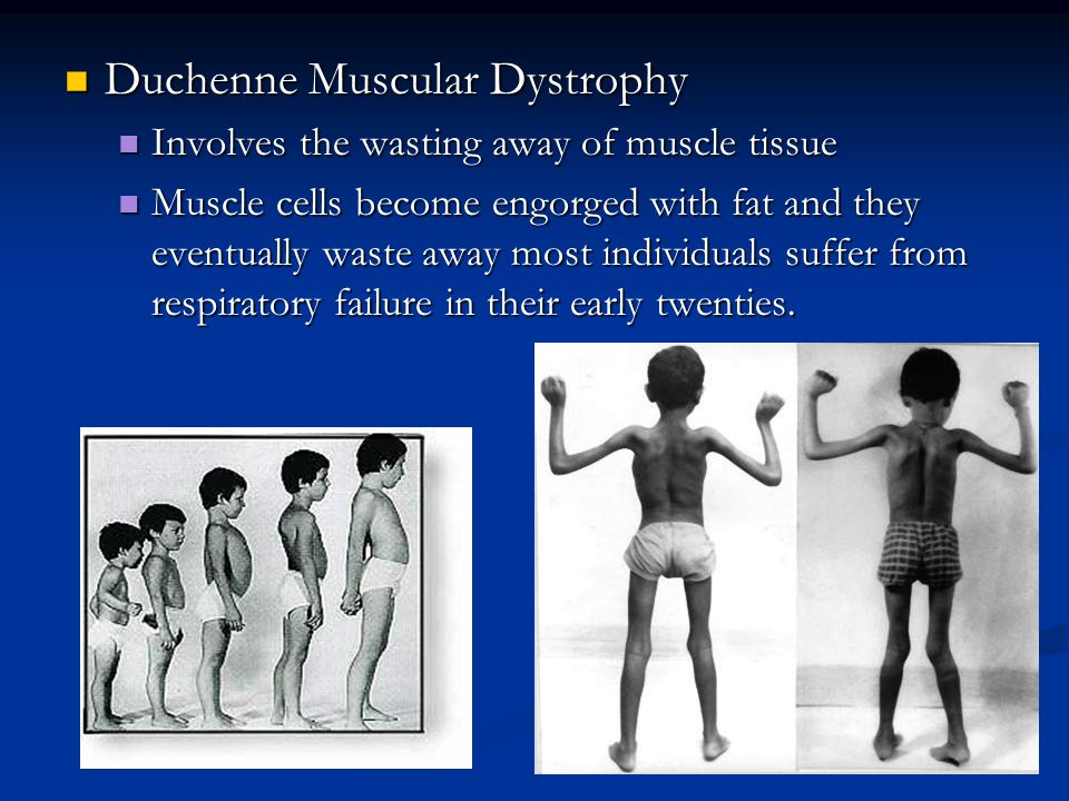 duchenne muscular dystrophy Duchenne muscular dystrophy is a condition which causes muscle weakness it starts in childhood and may be noticed when a child has difficulty standing.