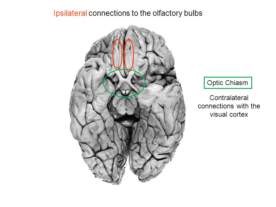 Contralateral connections with the visual cortex