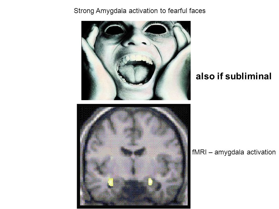 also if subliminal Strong Amygdala activation to fearful faces