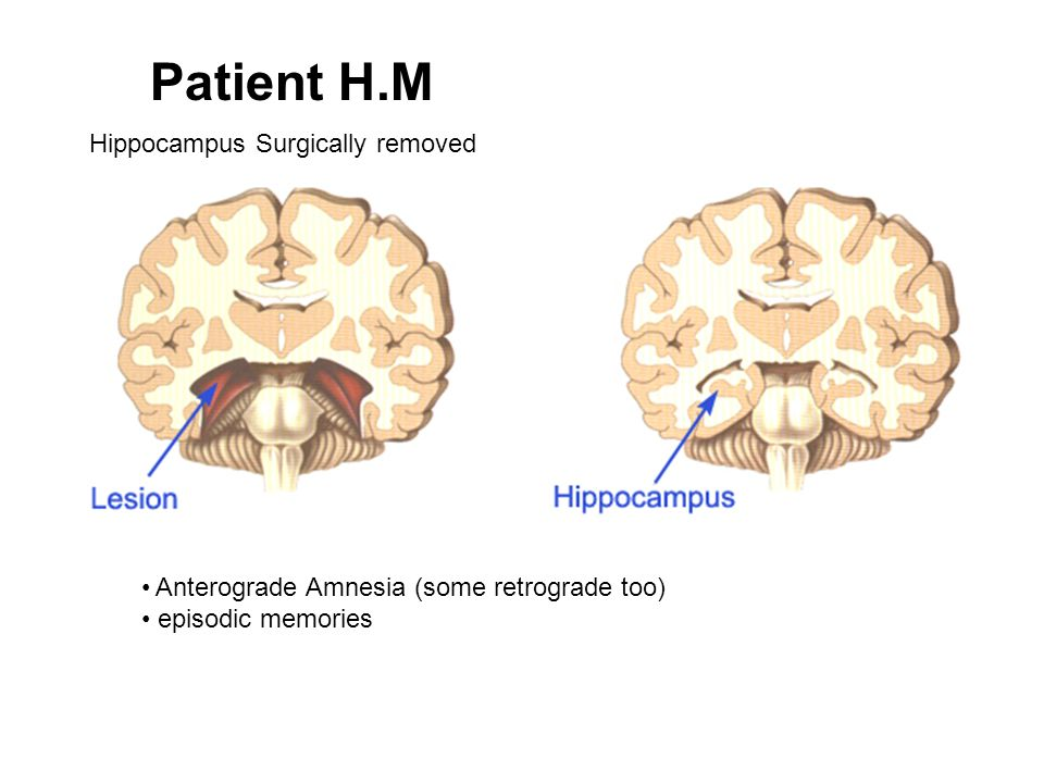 Patient H.M Hippocampus Surgically removed