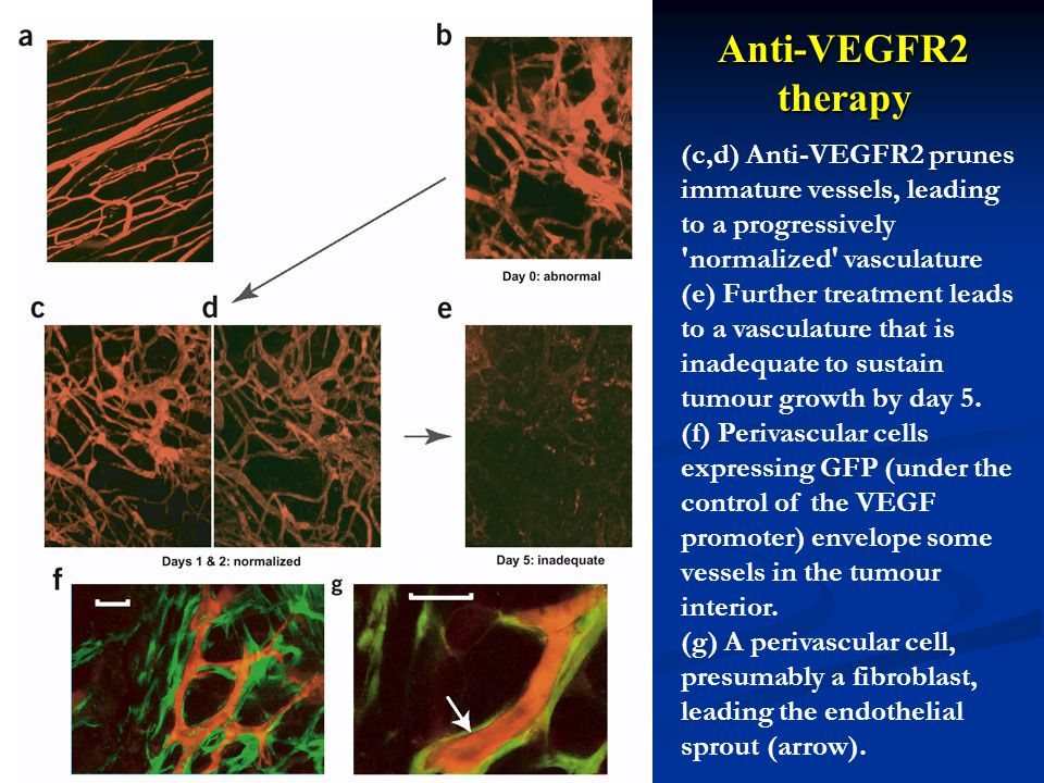 Anti-VEGFR2 therapy (c,d) Anti-VEGFR2 prunes immature vessels, leading to a progressively normalized vasculature.