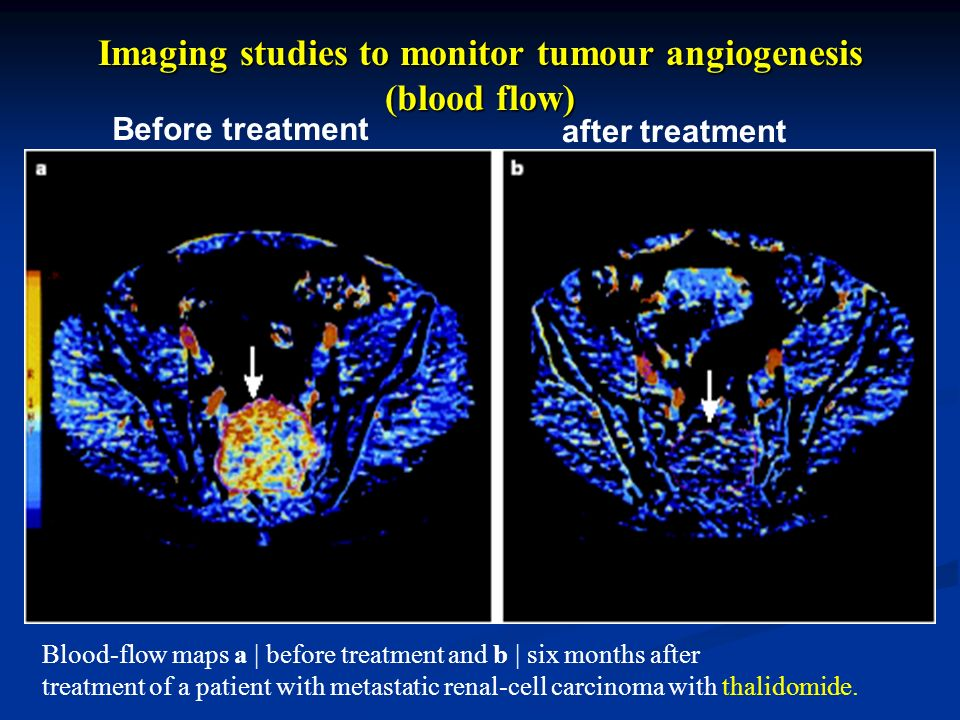 Imaging studies to monitor tumour angiogenesis (blood flow)