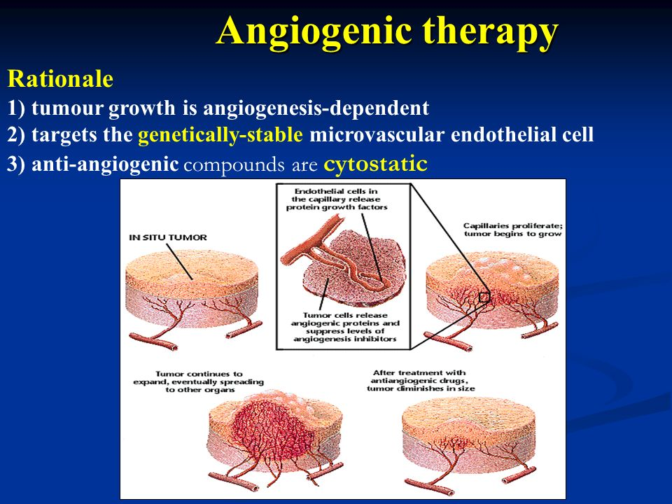 Angiogenic therapy Rationale
