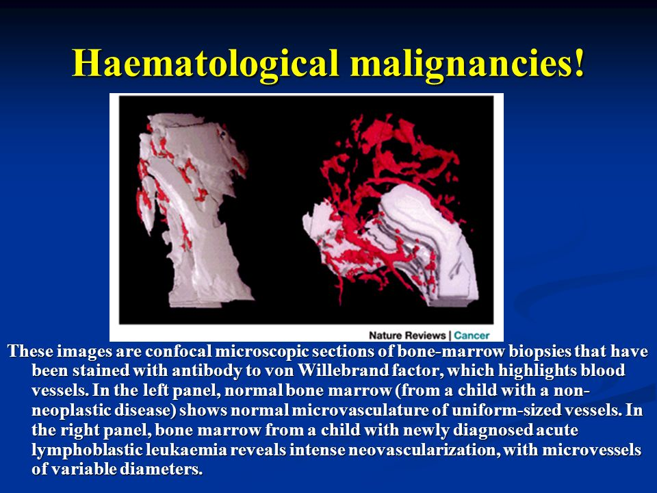 Haematological malignancies!