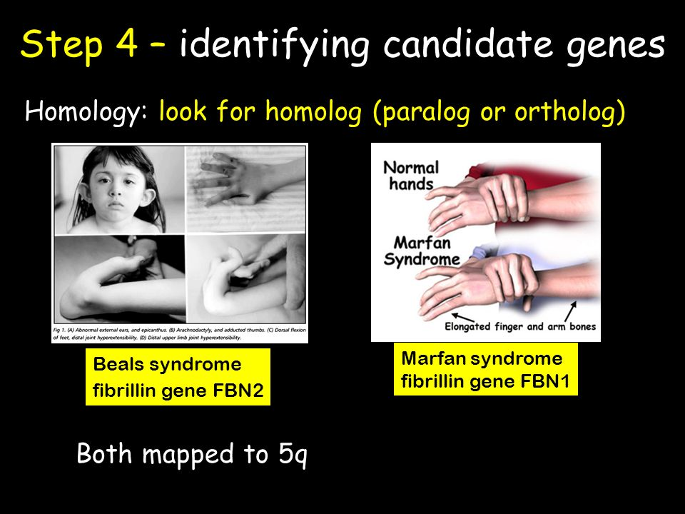 Step 4 – identifying candidate genes