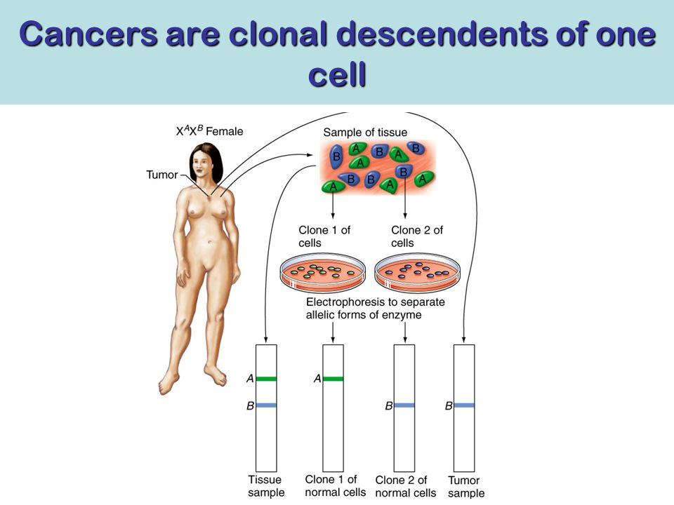 Cancers are clonal descendents of one cell