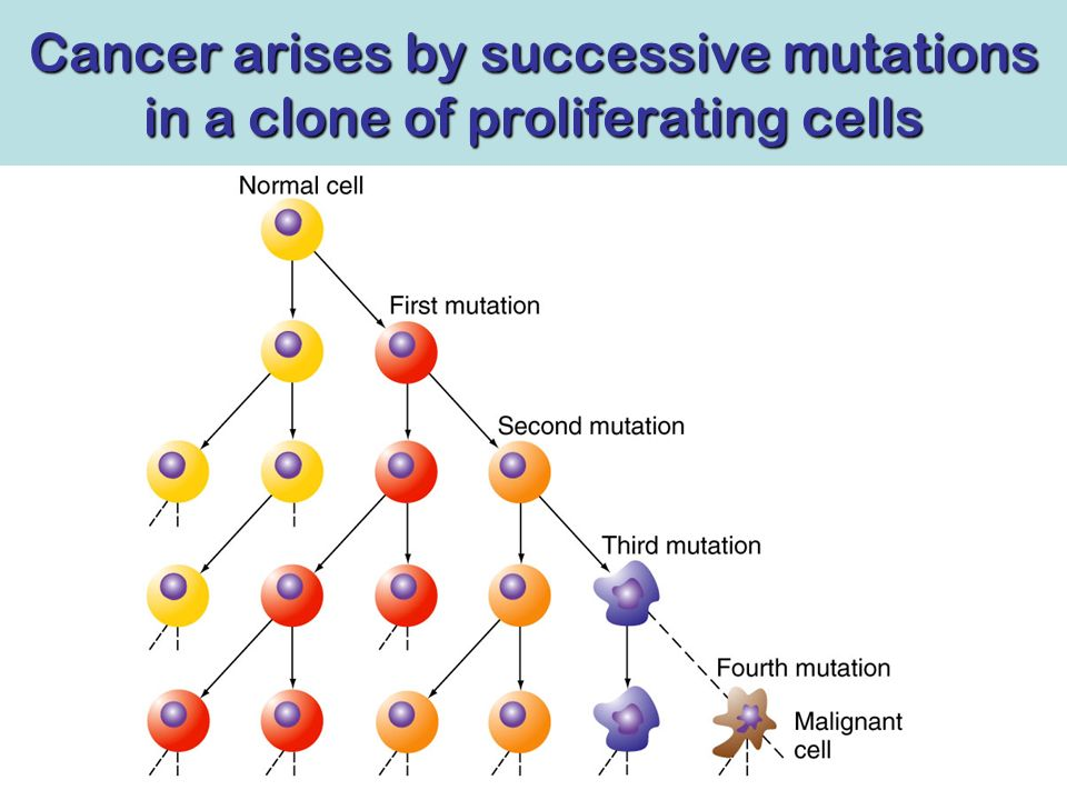 Cancer arises by successive mutations in a clone of proliferating cells