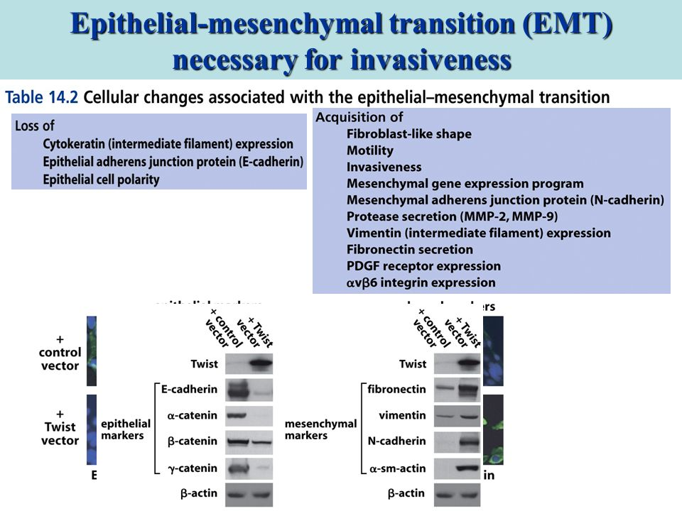 Epithelial-mesenchymal transition (EMT) necessary for invasiveness
