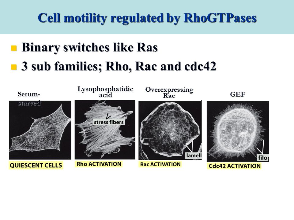 Cell motility regulated by RhoGTPases