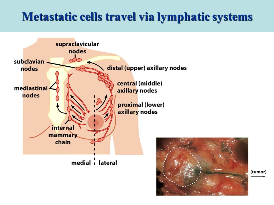 Metastatic cells travel via lymphatic systems