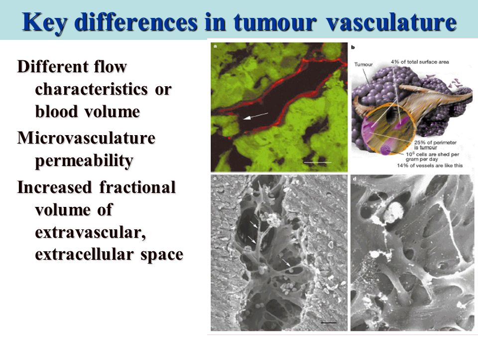 Key differences in tumour vasculature
