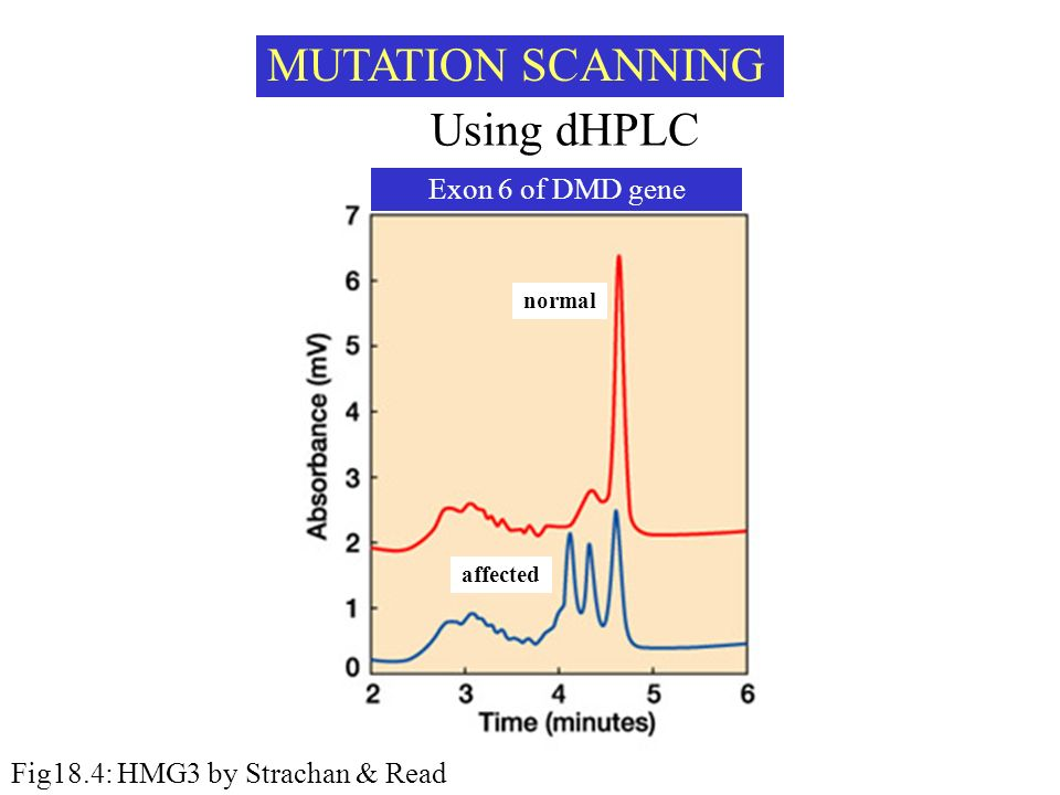 MUTATION SCANNING Using dHPLC Exon 6 of DMD gene
