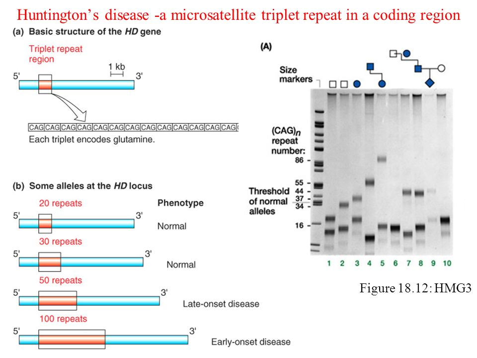 Huntington's disease -a microsatellite triplet repeat in a coding region