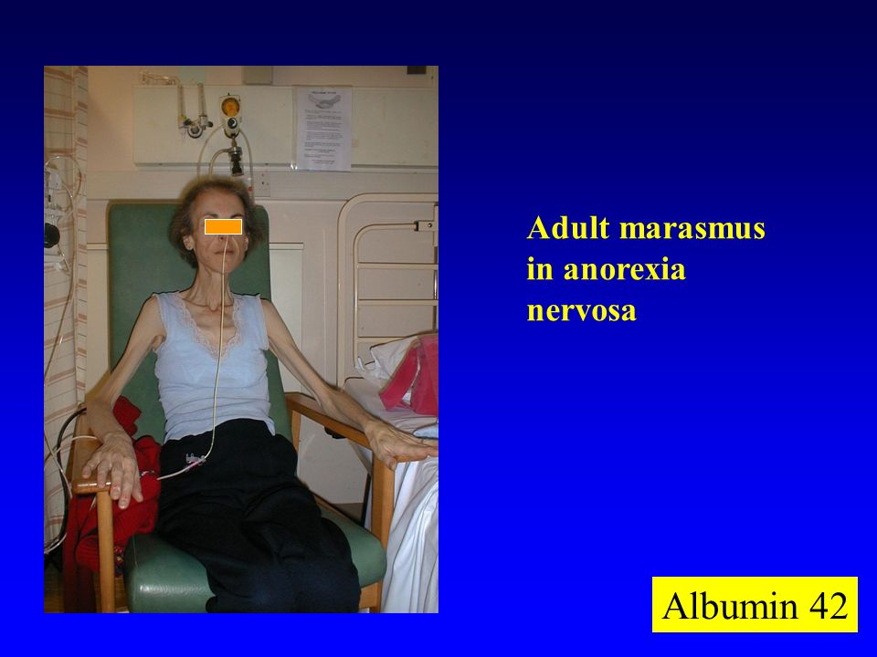 Adult marasmus in anorexia nervosa