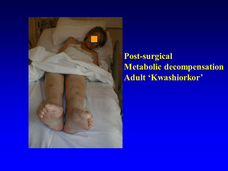 Post-surgical Metabolic decompensation Adult 'Kwashiorkor'