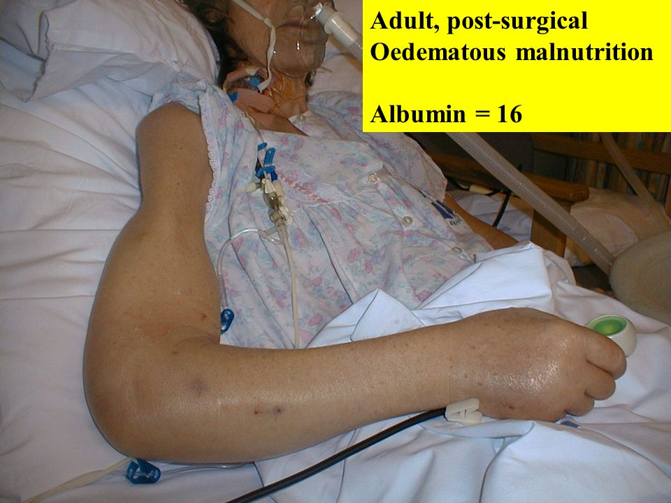 Adult, post-surgical Oedematous malnutrition Albumin = 16