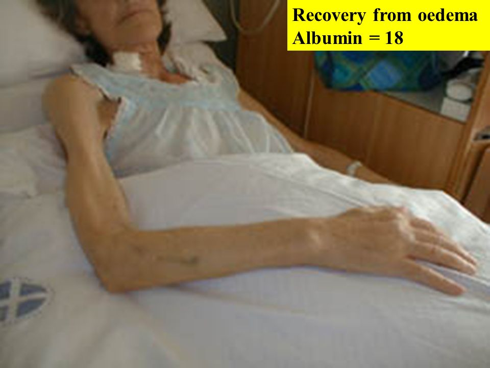 Recovery from oedema Albumin = 18