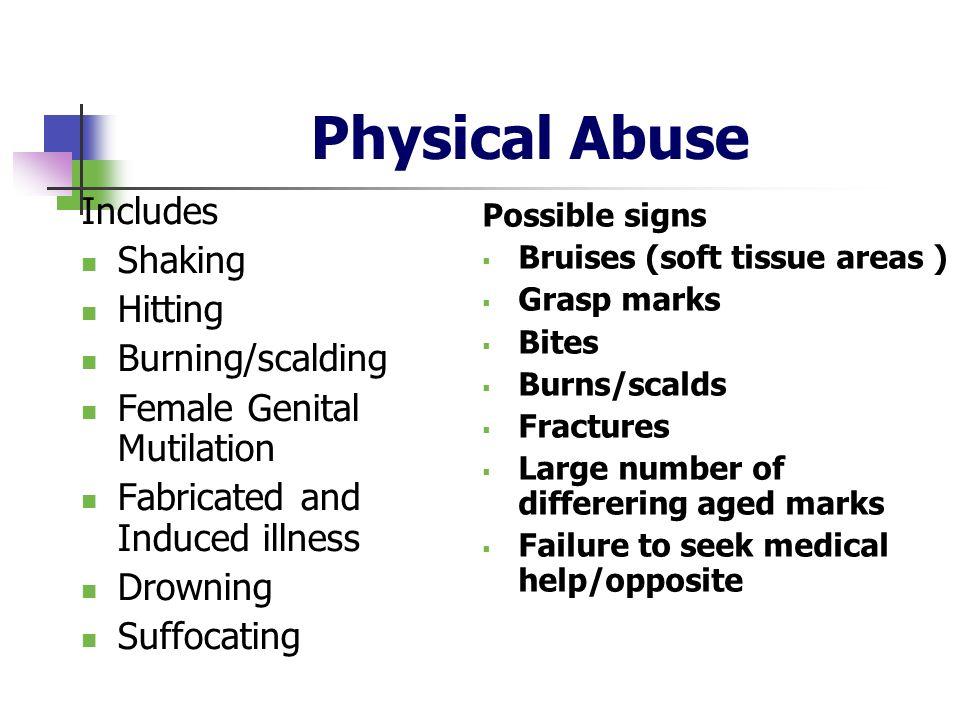 Physical Abuse Includes Shaking Hitting Burning/scalding