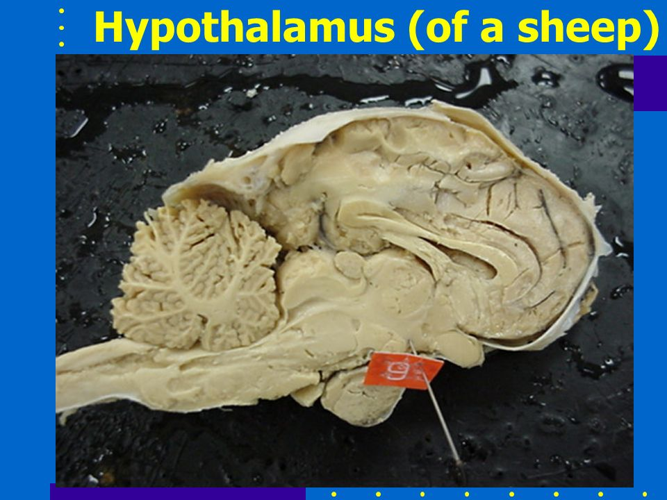 Hypothalamus (of a sheep)